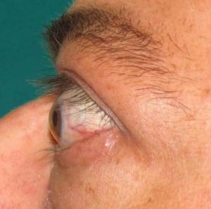 Poradnia Endokrynologiczna - wytrzeszcz gałek oczynych