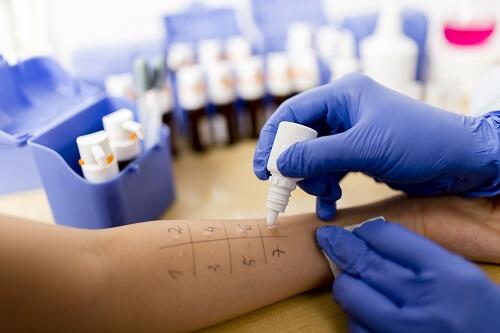 alergiczne testy skórne