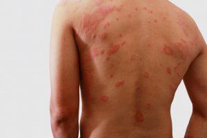alergia skórna, pokrzywka, wyprysk kontaktowy