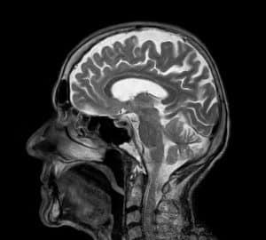 badanie głowy rezonansem magnetycznym